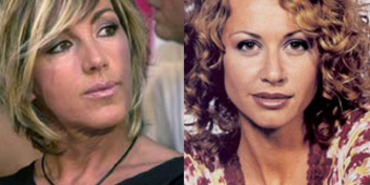Ana torroja esther arroyo